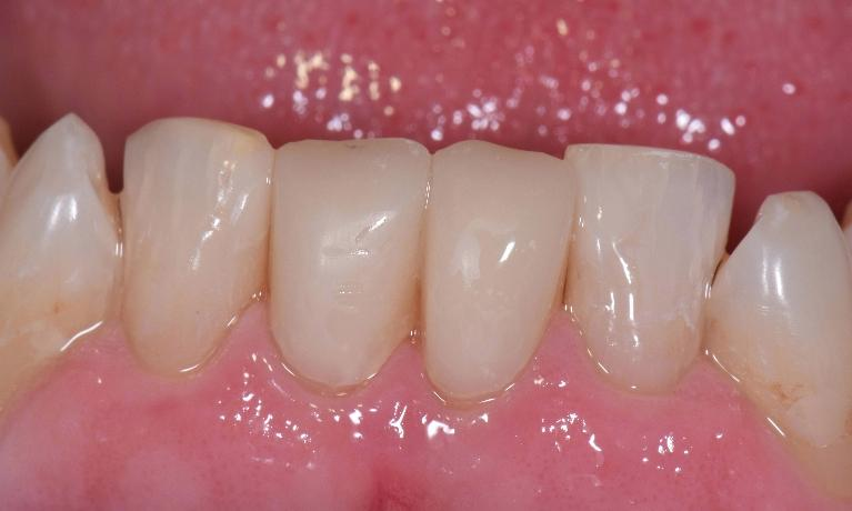 Tooth-Colored-Crowns-and-Fillings-After-Image